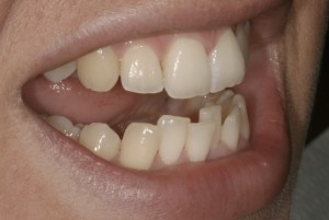 invisalign case study williams Invisalign case study essay writing service, custom invisalign case study papers, term papers, free invisalign case study samples, research papers, help.